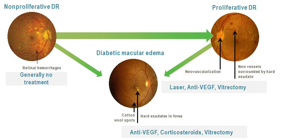 87164deb400 Proliferative Diabetic Retinopathy